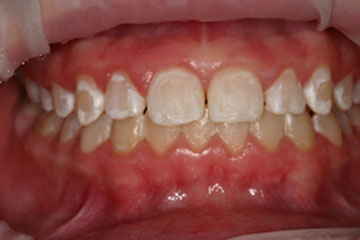 how to get white teeth in one week